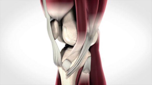 סרטון מוצר טכנולוגיה לניתוחי מניסקוס